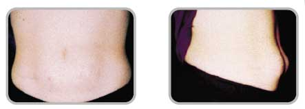 Lipohipertrofia - zestawy infuzyjne wkłucia